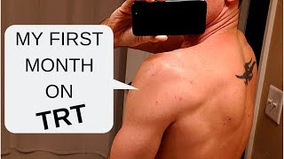 My First Month on TRT - Testosterone Replacement Therapy