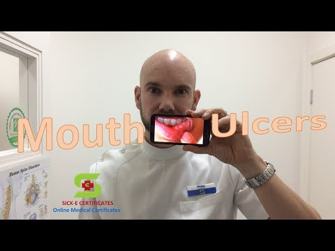 Mouth Ulcer Treatments