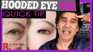 THE BROW LIFT EXPLAINED // Botox Brow Lift