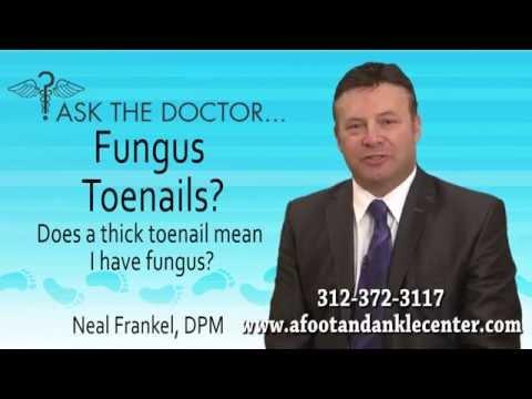 Does A Thick Toenail Mean I Have Toenail Fungus? Chicago, Lincolnwood, Oak Brook, IL - Podiatrist