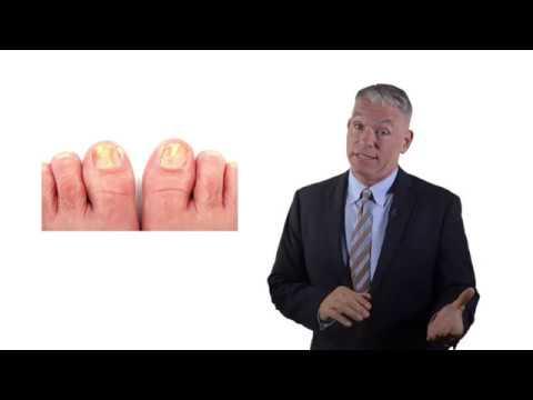 EASY Nail Fungus Treatments - Home Remedies for Toenail Fungus That Work FAST!