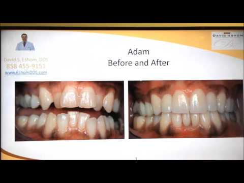 Instant Orthodontics With Porcelain Veneers In San Diego