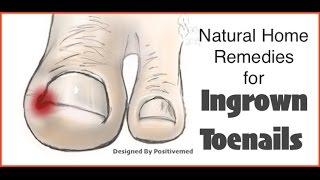 Natural Home Remedies For Ingrown Toenails