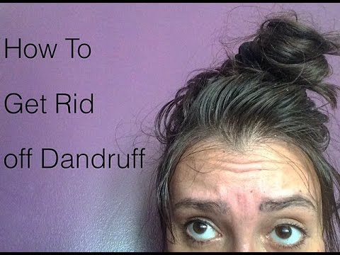 How to get rid of DANDRUFF  |  علاج قوي للتخلص من قشرة الرأس نهائيا