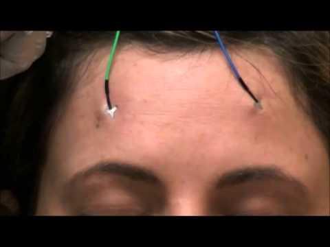 PressOn™ EEG Electrode