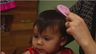 Baby Parenting Skills How To Get Rid Of A Baby S Cradle Cap