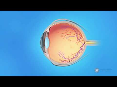 What is central retinal vein occlusion (CRVO)?