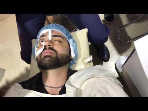 Dr. Soroudi performing ALL-laser (100% blade-free) LASIK vision correction surgery