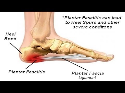 How to Get Rid of Plantar Fasciitis Permanently - 5 Home Remedies for Plantar Fasciitis.