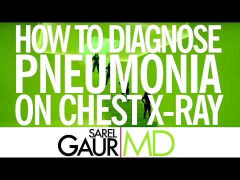 How to Diagnose Pneumonia on Chest X-Ray