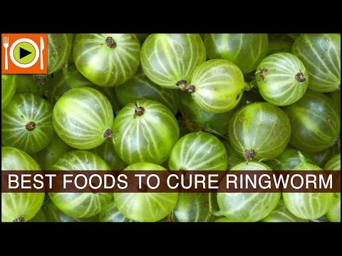 Best Foods to  Cure Ringworm | Including Vitamin A, Vitamin C & Vitamin E Rich Foods