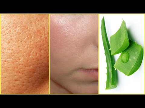 How To Get Rid Of Large Pores │Smooth, Tight, Young Skin NATURALLY │ Pores & Blackheads Disappear
