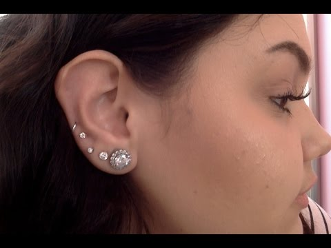 *UPDATED* Ear Keloid Removal | Amanda Mazzola