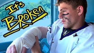 How I broke my arm