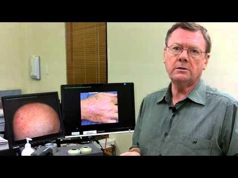 PDT Treatment That Removes Sunspots In Brisbane