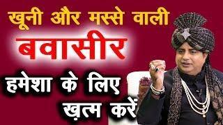 Download बवासीर हमेशां के लिए ख़त्म करें, Cure Piles without any medicine : Sanyasi Ayurveda Video