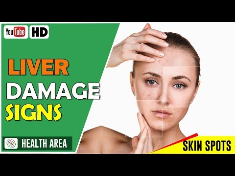 6 Early Symptoms of Liver Damage Don't Ignore These