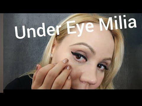 Best under Eye Cream for Milia prone skin|Sensitive skin *Eye Cream*!Mario Badescu ✨July 2017