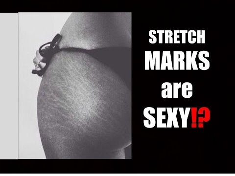 VLOG~WHAT MEN THINK ABOUT STRETCH MARKS😳WINTER CLOSET TOUR😍