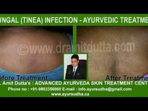 Fungal Infection Ayurvedic Treatment :: Best Ayurvedic Treatment in India