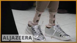 🇾🇪Yemen medical centres try to save war amputees l Al Jazeera English