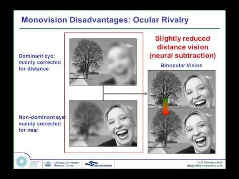 Laser Blended Vision - Professor Dan Reinstein (French)