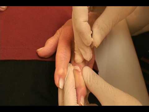 Gout-Rheumatoid Arthritis-drainage