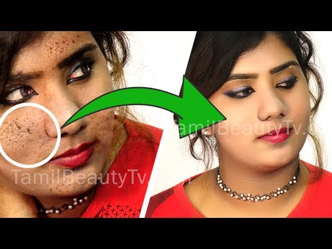 How to remove pimple marks - Home Remedies for Black Spots on Face - Tamil Beauty Tips