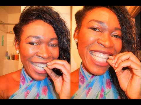 {#159} HOW TO REMOVE ESSIX RETAINERS. Removable Retainers