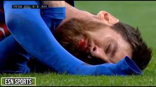 Cristiano Ronaldo, Messi & Neymar   l  Horror Fouls,Bleeding l 1080i HD
