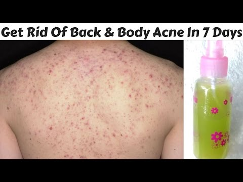 How To Get Rid Of Back And Body Acne In Just 7 Days | DIY Back and Body Acne Spray