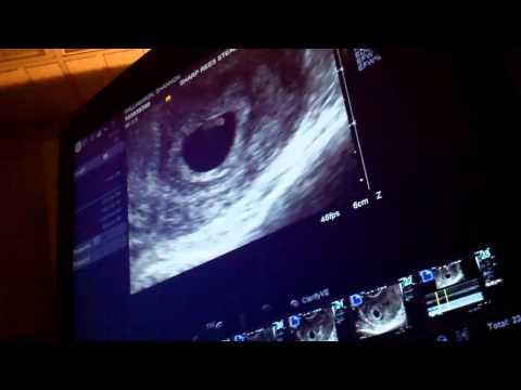 Ultrasound 6 weeks 3 days