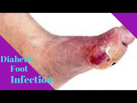 08 Remedies To Cure Diabetic Foot Infection