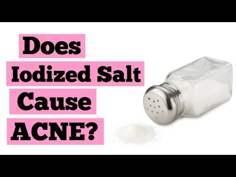 Does Iodized Salt Cause Acne? | Clear Skin Diet & Tips | Iodine & Breakouts