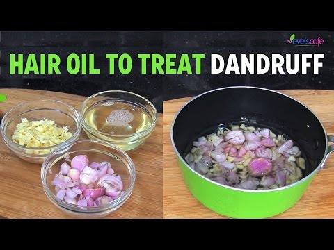 Anti-Dandruff Hair Oil Preparation - Dandruff Cure   Natural Hair Care