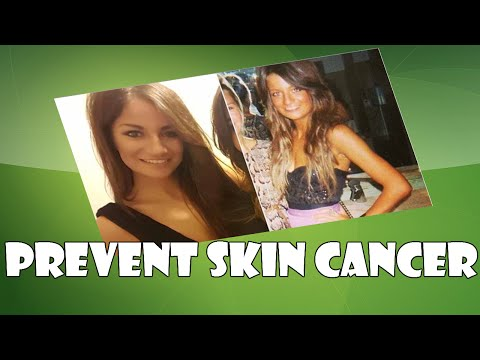 How to Prevent The Skin Cancer from Inside Out of Your Body Healthy Useful Info