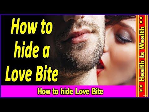 Love Bites के निशान को मिटाने के आसान उपाय - how to get rid of lave bites - How to hide love bites