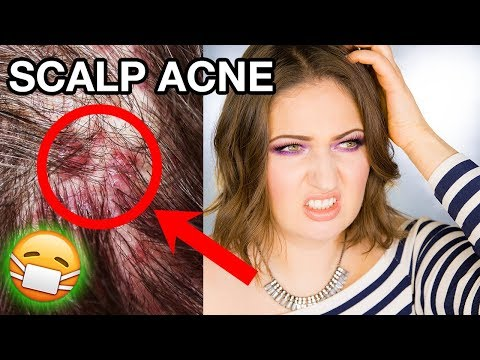 SCALP ACNE & DANDRUFF How I Got Rid of It Completely!
