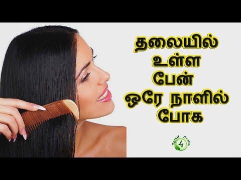 ஒரேநாளில் பேன் தொல்லையை போக்க எளியவழி (lice treatement in tamil)