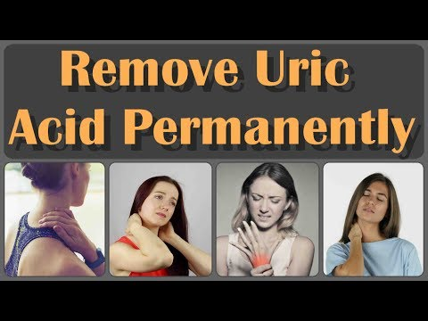 How To Cure Uric Acid And Joint Pain And Top 10 Best Healthiest Foods For Uric Acid And Gout Pain