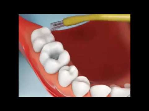 No more Black Spot Plaques   Removing Cavity on Teeth Procedure