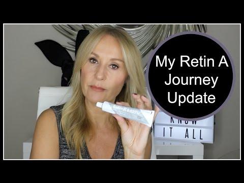 My Retin A Journey Update - Nadine Baggott