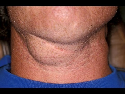 Home remedies for swollen lymph nodes | swollen lymph nodes in throat