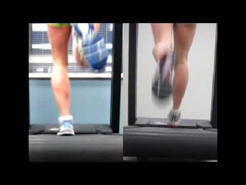 Shin Splint - Video Analysis RunSmart Online