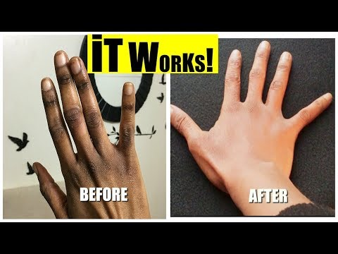 💅🏾 HOW TO GET RID OF DARK KNUCKLES | At Home💅🏾