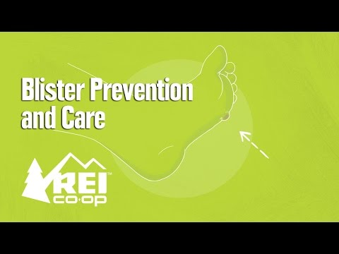 Blister Prevention and Care