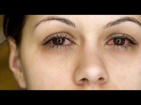 लाल आखें और उनमें जलन के अचूक उपाय    Red Eyes, Bloodshot Eyes    Causes and Treatment in Hindi