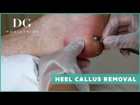 Heel callus removal: Mild