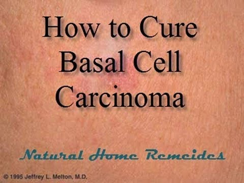 How to Cure Basal Cell Carcinoma