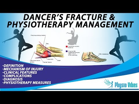 DANCER'S FRACTURE & PHYSIOTHERAPY MANAGEMENT